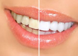 5 cách tẩy trắng răng tự nhiên cực kỳ hiệu quả tại nhà