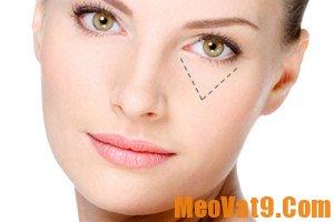 Mẹo chống lão hóa cho mắt hiệu quả, nhanh chóng và an toàn