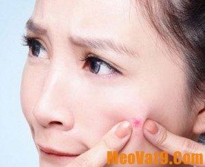 Mẹo chữa sẹo thâm hiệu quả từ những thứ đơn giản